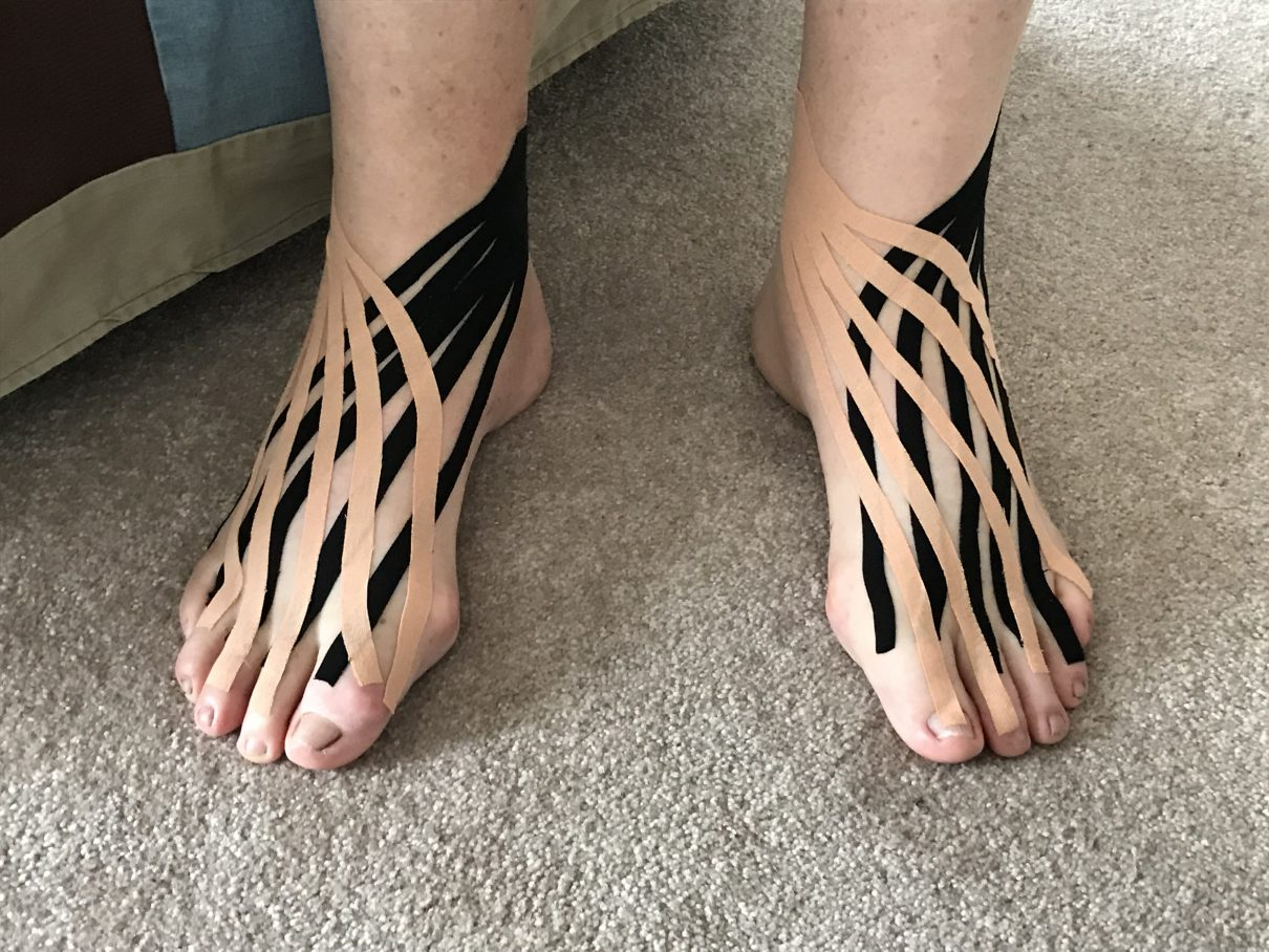 Kinesio Taping Post Quad Bipass Surgery