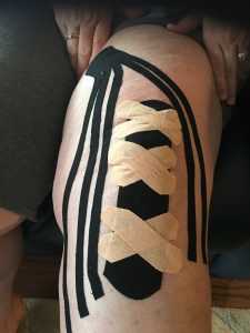 Kineiso Tape Knee Replacement Surgery