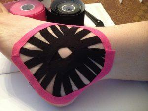 Kinesio Tape for Ankle Sprain